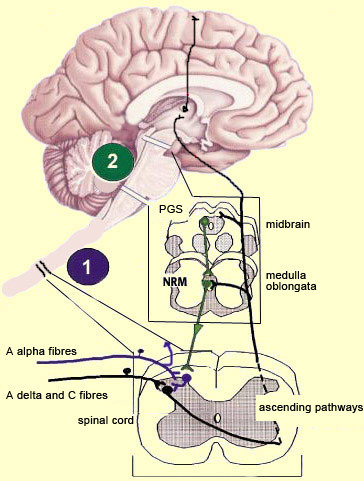 the brain from top to bottom Area of Brain Pain